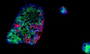The researchers were able to monitor the virus's growth in organoids derived from human intestinal cells. Pink and red show areas of SARS-CoV-2 infection.