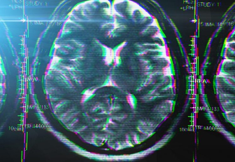 """COVID and """"Brain Fog,"""" Memory Loss, and Dementia are investigated by a neurologist"""