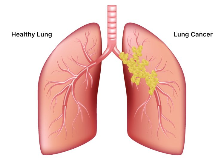 healthy Lung and Lung Cancer