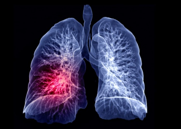 Cancer metastasis to the lungs is one of the most prevalent types of cancer metastasis.